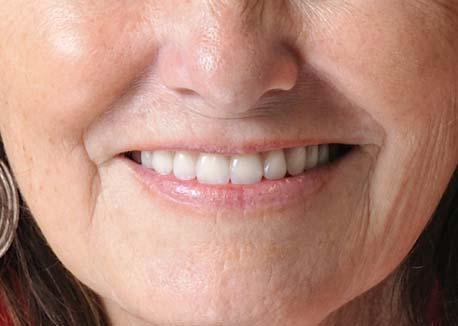After-Smile Makover
