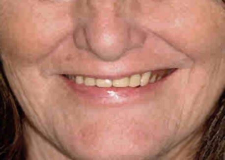 Before-Smile Makover