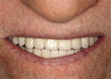 After-All-on-4 Dental Implants