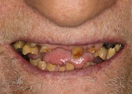 Before-All-on-4 Dental Implants