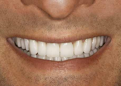 After-Bruxism Smile Makeover
