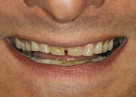 Before-Bruxism Smile Makeover