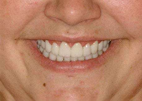 After-Gummy Smile