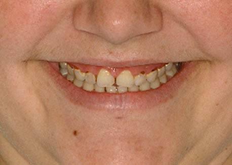 Before-Gummy Smile
